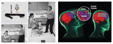 Concussionblog 140217